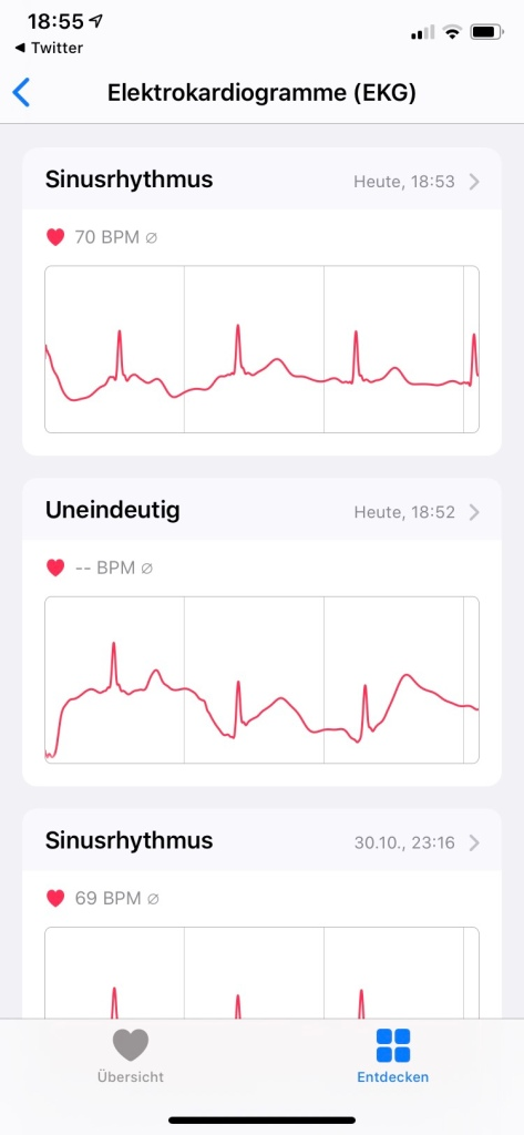EKG als Ergebnis